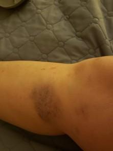 Poor knee